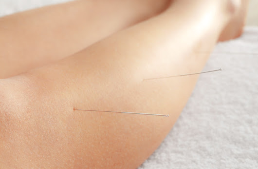 Acupuncture Found Effective For IBS-D