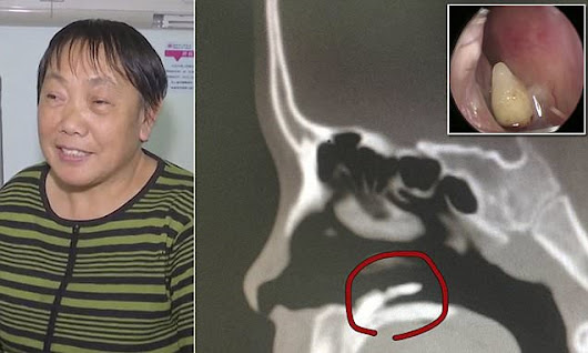 Woman with nose bleeds in China finds tooth in nose | Daily Mail Online