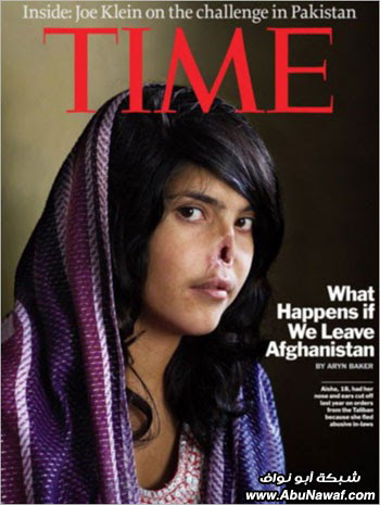 مجدوعة الأنف الأفغانية