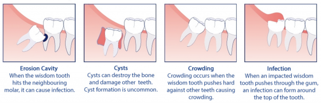 How Much Does Getting Wisdom Teeth Removal Cost - TeethWalls