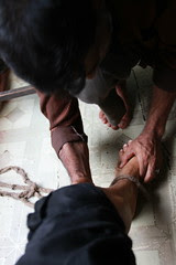 The Local Bone Setter And My Leg by firoze shakir photographerno1