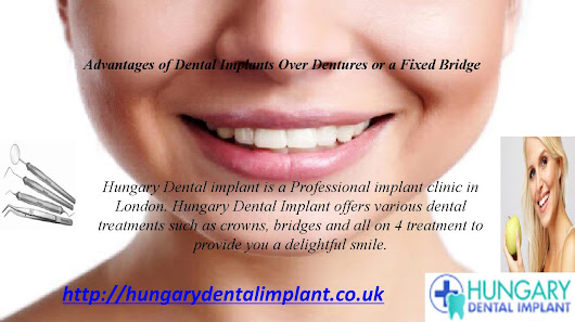 Advantages of Dental Implants Over Dentures or a Fixed Bridge