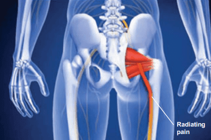 Piriformis Syndrome Chiropractic Care | Advanced Health Solutions Georgia Spine & Disc