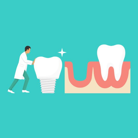Are Dental Implants Really the Best Solution?