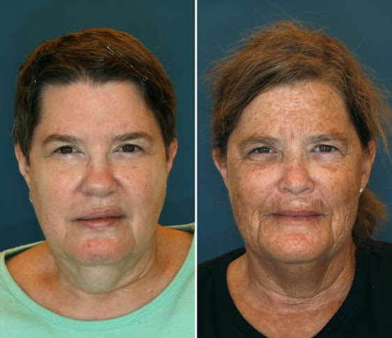 How to avoid a Facelift