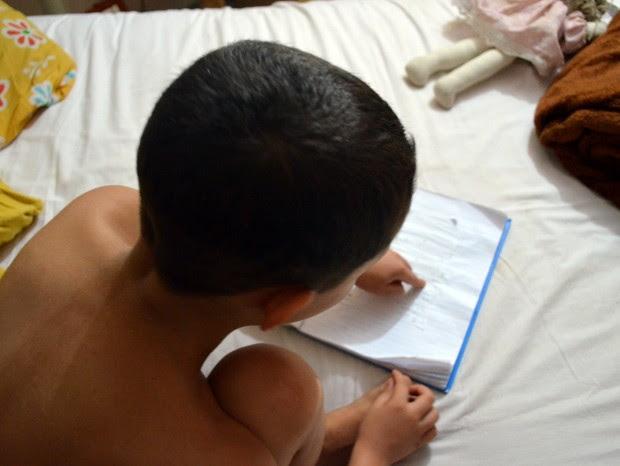 Professora que apelidou menino de 'perna de pau' é suspeita de bullying em Piracicaba (Foto: Thomaz Fernandes/G1)