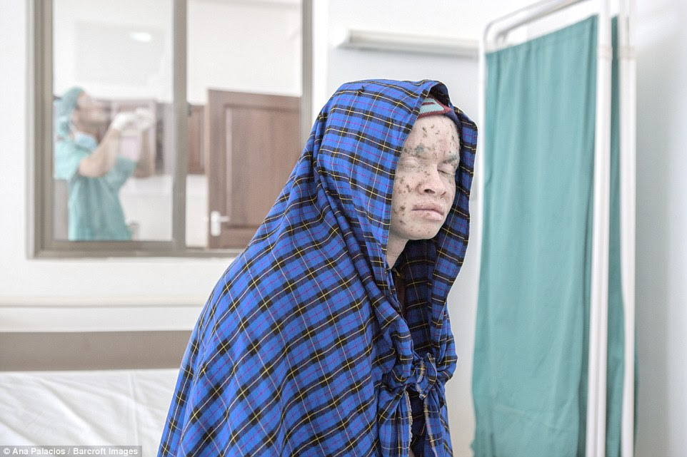 An albino woman keeps her head covered to protect her delicate skin as she waits to see a doctor at the Regional Dermatology Training Centre