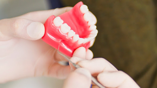 What Is Enamel Erosion?