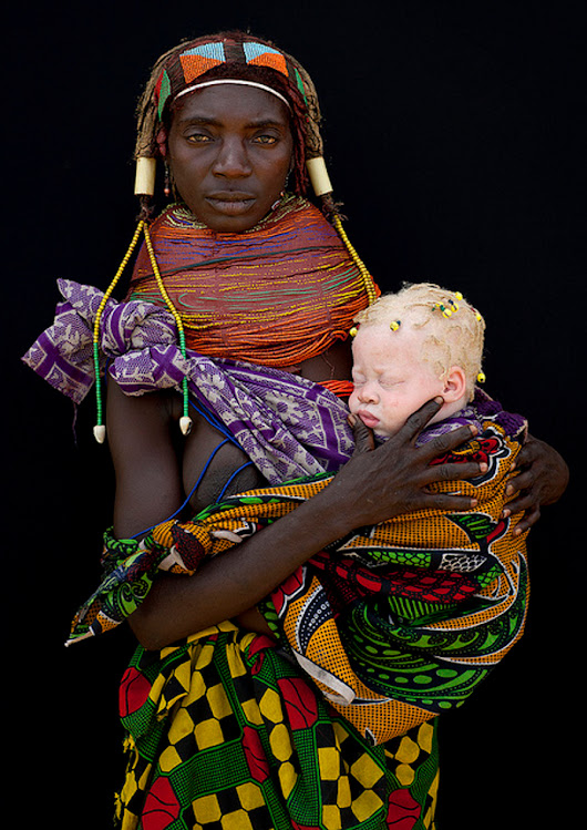 Albinism And Whiteness - The Origin Of The Caucasian - Grandmother Africa
