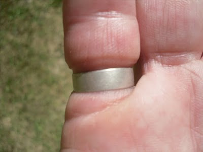 How to remove wedding ring