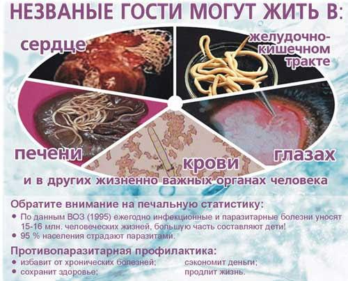 Миграция глистов - симптомы паразитов