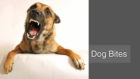 Dog Bite Lawyer Beverly Hills | Dog Bites Attorney - Lavaee Law Group
