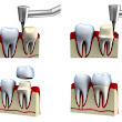 The Types of Dental Crowns Available When You Need a Restoration