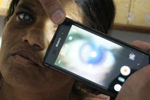 Smartphone gets smarter, can detect eye defects