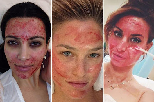 Kim Kardashian's a fan, but what is a vampire facial, is it safe and does it really make you look younger?
