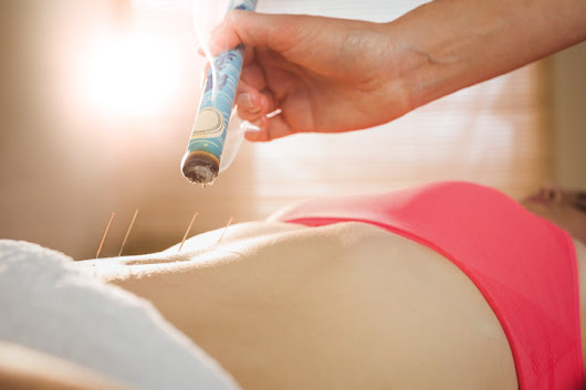 Acupuncture Outperforms Drugs For Infertility, Promotes Pregnancy