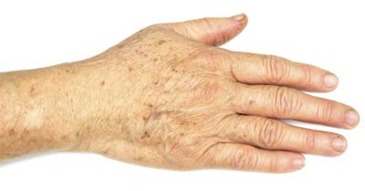 What Causes Yellow Color in My Hands? | LIVESTRONG.COM