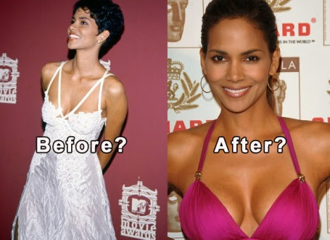 Halle Berry before and after breast implants?? (image hosted by mydochub.com)