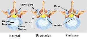Stages of Spinal Disc Herniation