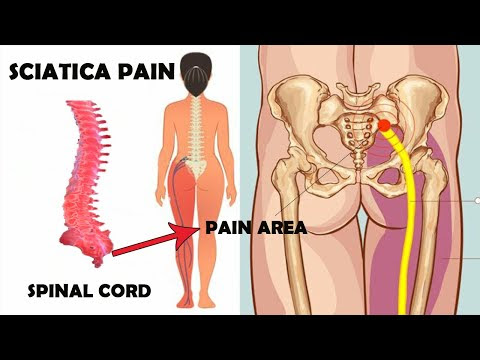 acupressure points for sciatica pain