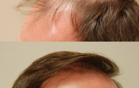 Before & After - Silicon Valley Hair Institute - Hair Therapies