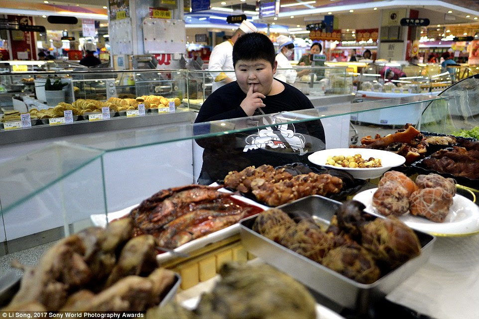 Li Hang, an eleven-year-old boy from Harbin, China, has Prader-Willi Syndrome, a chromosome abnormality which means he can't stop himself from overeating. He weighs more than 340lbs and is currently undergoing medical treatment