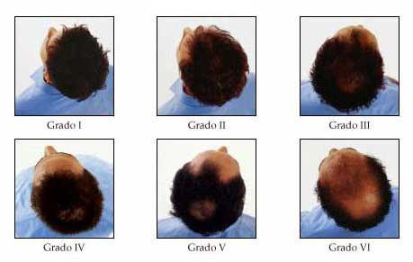 caduta capelli stress ricrescono - Alopecia da stress cause e rimedi per la perdita di capelli psicogena