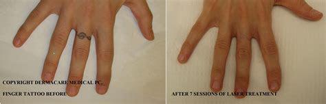 laser tattoo removal york