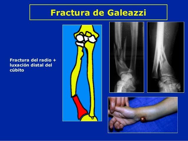 Resultado de imagen de Fractura de Galeazzi