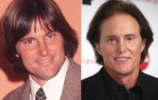 Bruce Jenner before and after plastic surgery - (image hosted by http://www.businessinsider.com)