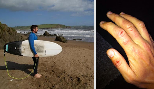 British Surfer Victim of UK's First-Ever Shark Attack