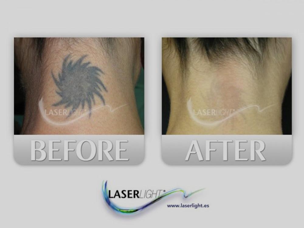 Eliminación Láser Rise Tattoo