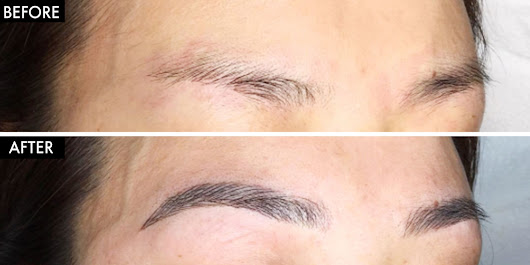 What Exactly is Microblading?