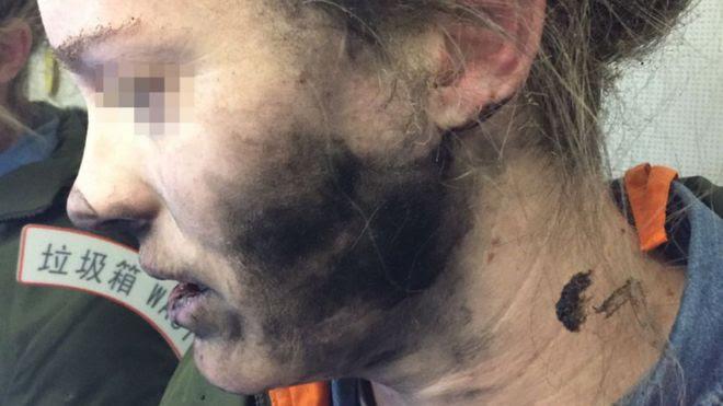 Detalhe do rosto da mulher cujo celular explodiu