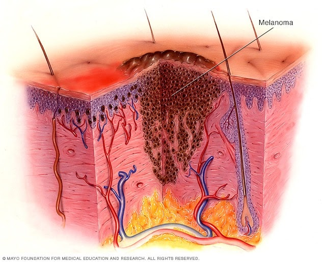 Patients residing with an incurable claret melanoma have a brand new alternative