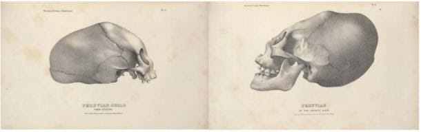 Lithographs by John Collins, 1839 from Samuel Morton's 'Crania Americana'