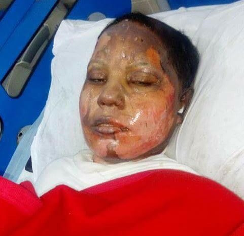 Christian girl set on fire for turning down Muslim man's marriage proposal - Geller Report