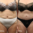 Before and After / Plastic Surgery / Tummy Tuck - C.A.