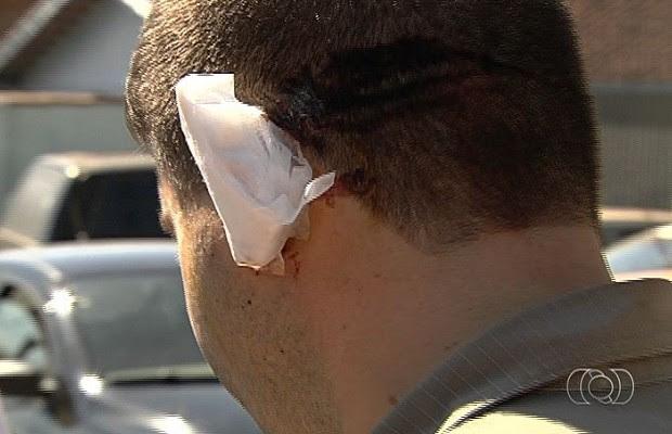 Suspeito arranca e engole pedaço da orelha de PM com mordida, em Goiás (Foto: Reprodução TV Anhanguera)