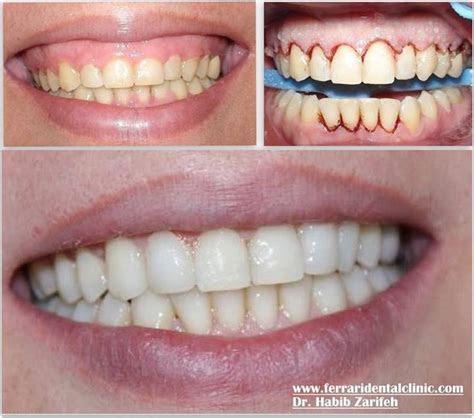 The Best Hollywood smile dentist in Beirut Lebanon Dr