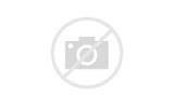 Photos of Acute Pain Behind The Knee