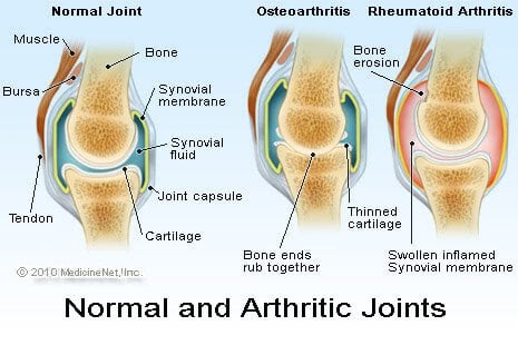 Nursing Care Plan for Rheumatoid Arthritis