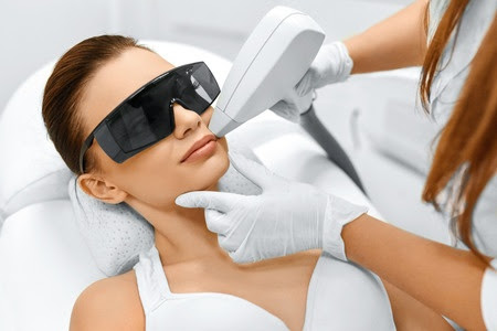 Laser Hair Removal For Your Face - Remove Facial Chin Hair