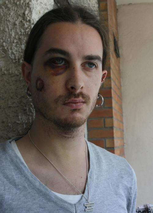 Yann Zoldan, le 23 avril, blessé à la joue droite.