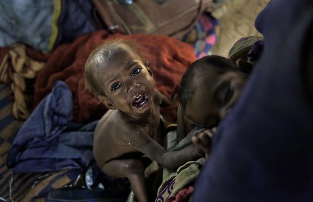 Byer fotografou Sangeeta pela primeira vez quando ela tinha dois anos e pesava apenas quatro quilos. Segundo a fotógrafa, a mãe, que vive na favela Charan, em Dharamsala, Índia, fez a filha passar fome para conseguir mais dinheiro com esmolas e alimentar o resto da família. Desde que a foto foi feita, Sangeeta recebeu ajuda em uma clínica médica móvel mantida por uma instituição de caridade, a Tong-Len Charitable Trust, e está melhorando. (Foto: Renée C. Byer)