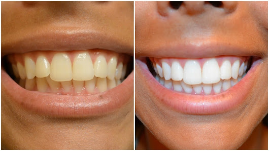 Are Teeth Whitening Strips Effective? | New Jersey Orthodontics
