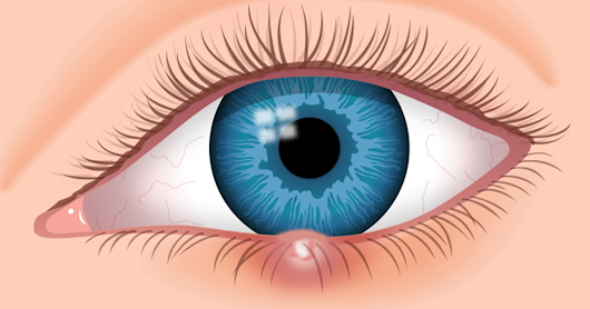 7 Eye Stye Facts: Identify and Cure Your Stye