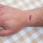 Un implant neuronal sans fil pour lutter contre la maladie de Parkinson - SciencePost