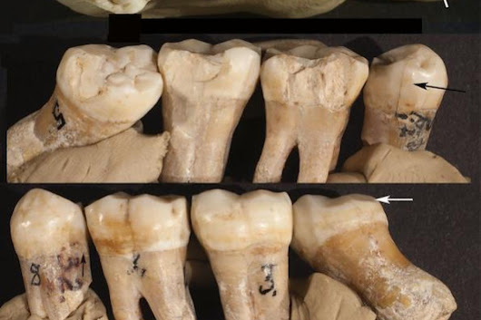 Cavemen visited ancient dentists and cleaned their gnashers with toothpicks made from BONE