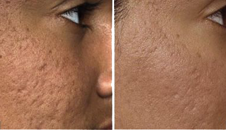 Laser acne and surgical scar treatment in Long Island. Value for money with satisfying results, Westbury, New York